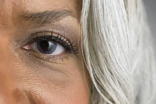 Glaucoma 3
