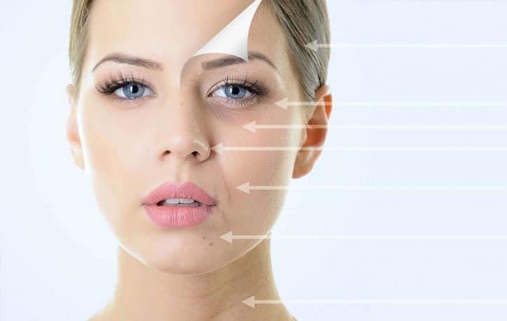 Lack of Collagen