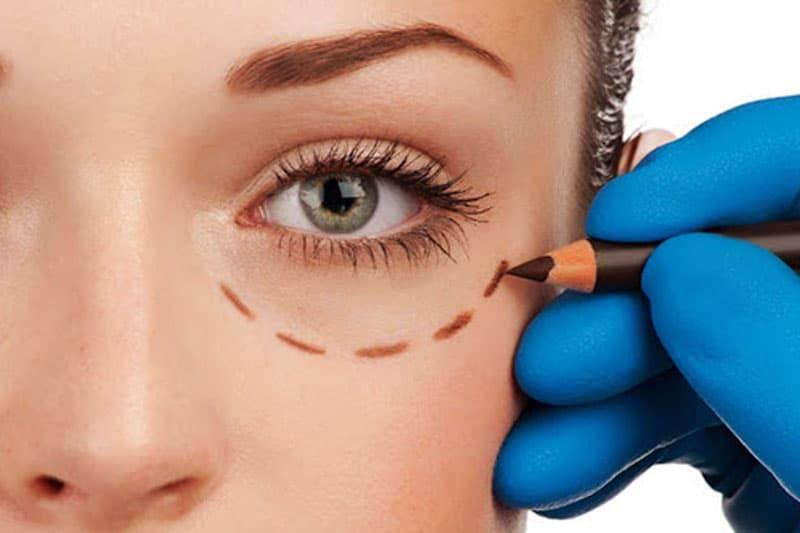 Oculoplasty2