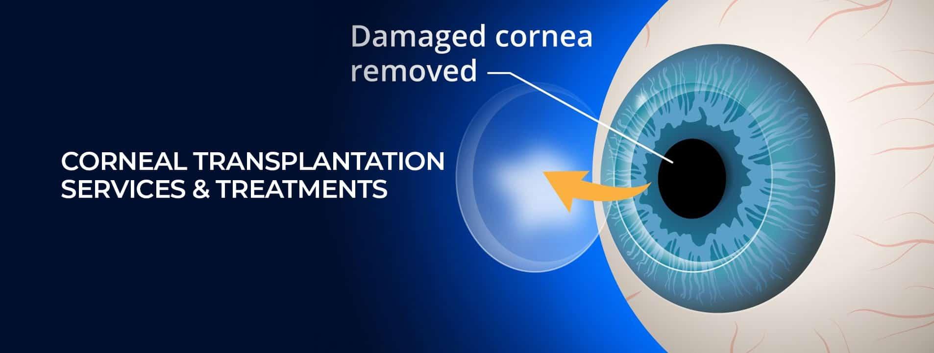 Corneal transplantation services treatments