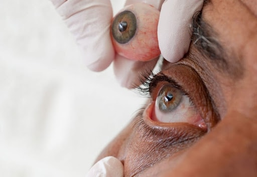 Ocular Prosthesis4