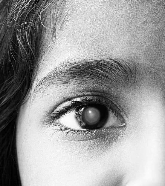 Pediatric Cataract.2jpg