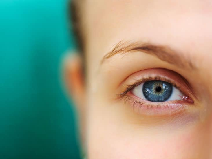 eyelid ptosis3