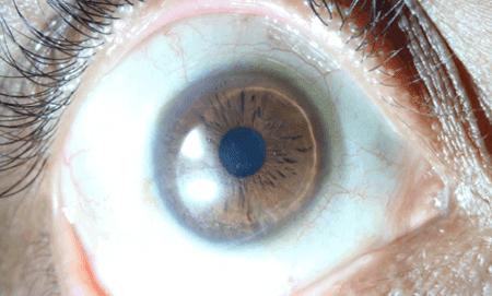 Contact Lens 1