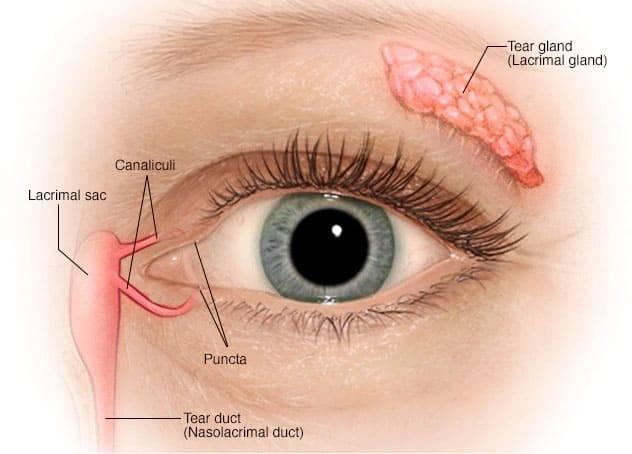 Dry Eye1