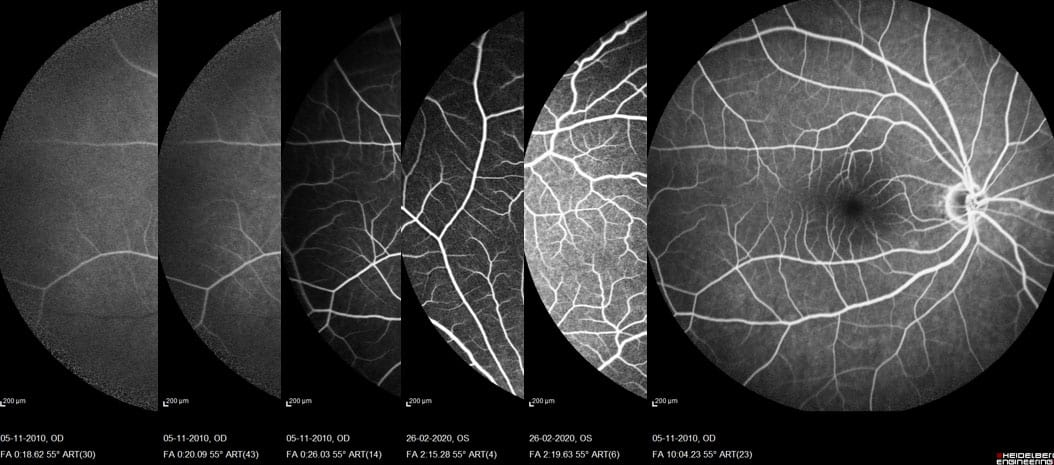 Fluorescein angiography FFA
