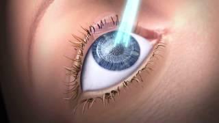 Laser Procedures in Keratoconus
