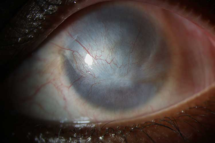 Ocular Surface Reconstruction Clinic