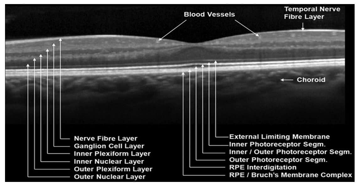 Optical coherence tomography OCT