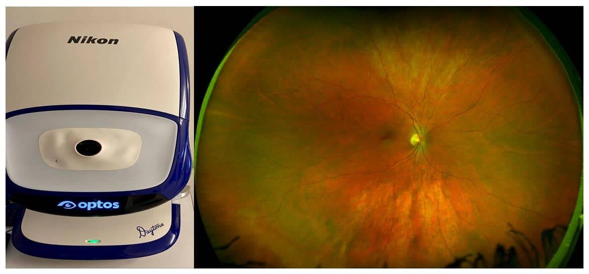 Optomap wide field retinal photography Optos Daytona
