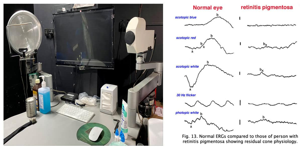 Visual Electrophysiological Tests