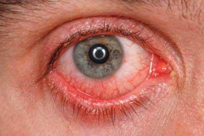 Dry Eye Symptoms Checker1