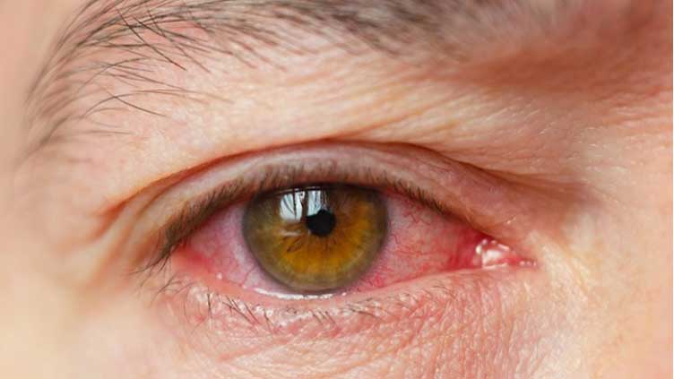 Dry Eye Symptoms Checker3