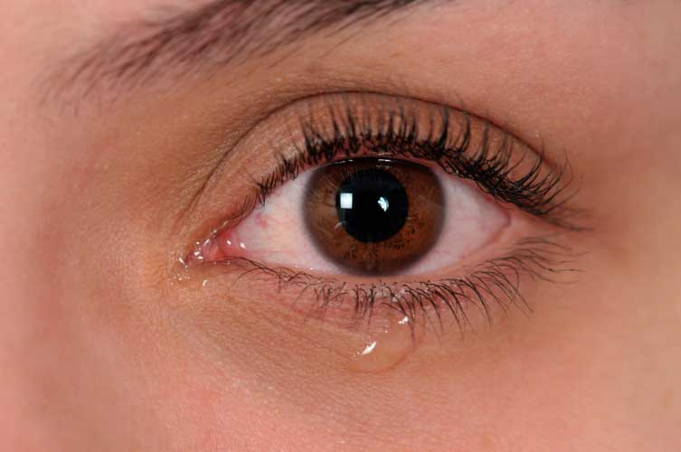 Dry Eye Symptoms Checker4