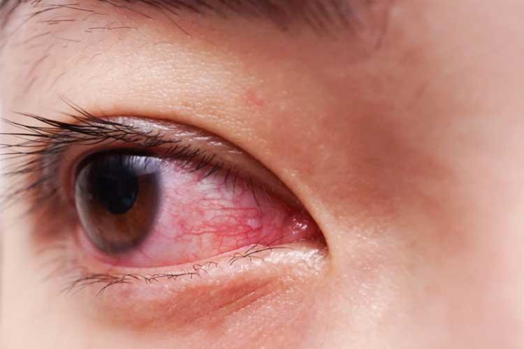 UVEITIS symptoms checker1