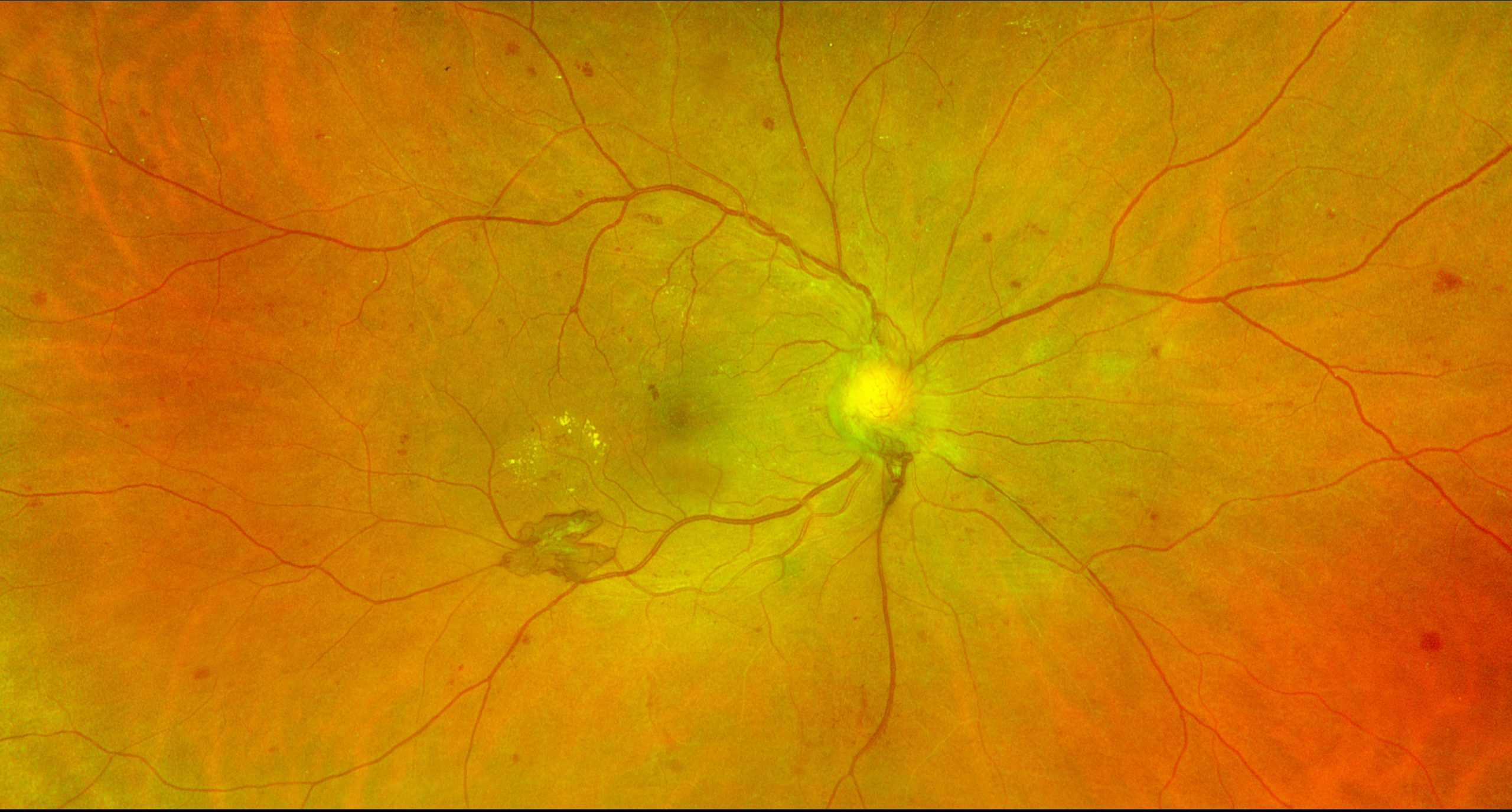 Diabetic retinopathy home page image 2 scaled