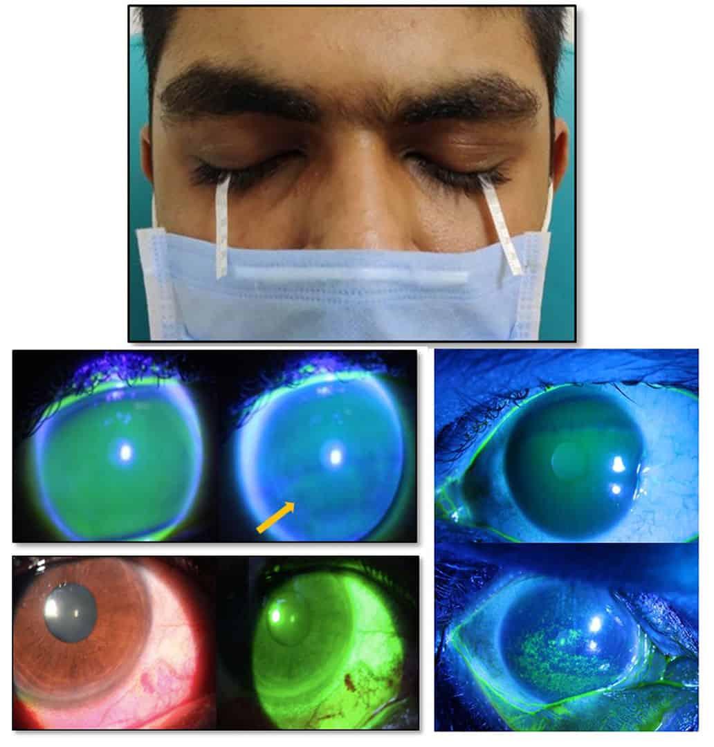 Dry eye 1