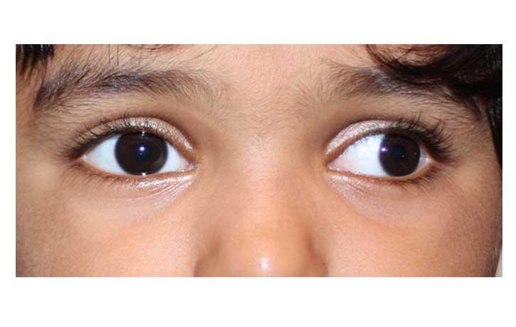Pediatric Squint 1