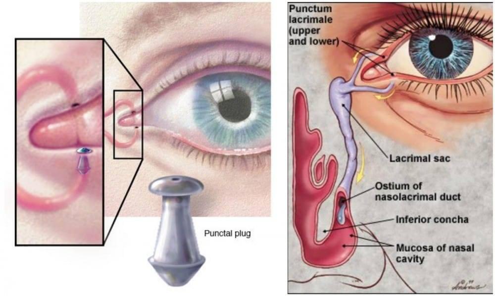 Punctum Plug123