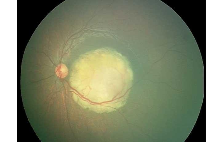 Retinablastoma1