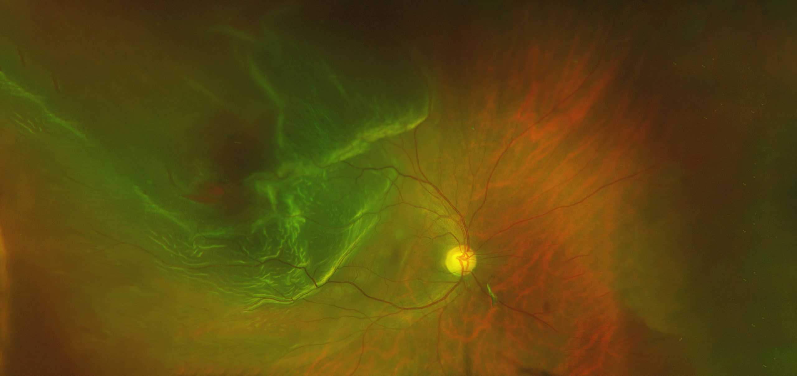 rETINAL IMAGING home page image 2 rd scaled